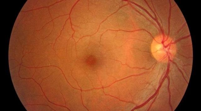 Desprendimiento de la retina