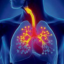 Bronquitis, causas y síntomas
