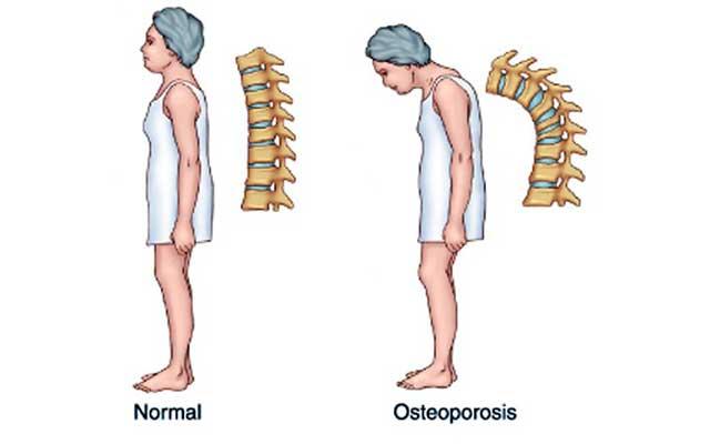 Como detectar la osteoporosis