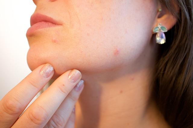 herpes oral