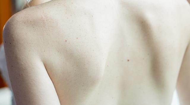 Identificar un melanoma
