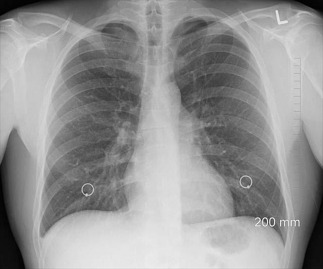 Cáncer de pulmón: síntomas y causas de esta enfermedad