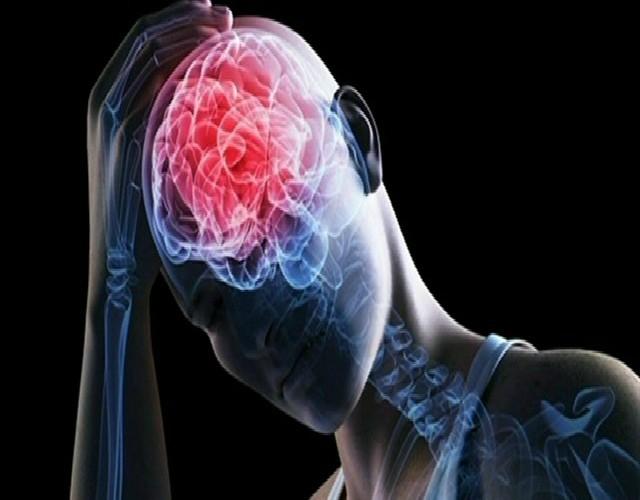 ataxia cerebelosa aguda