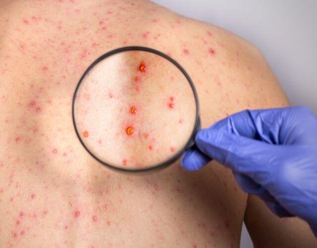 curar el herpes de espalda