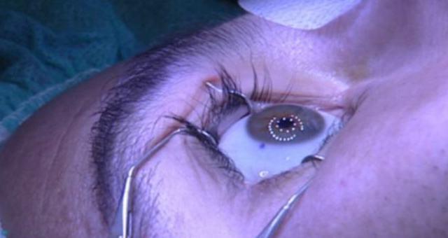 La operación de miopía