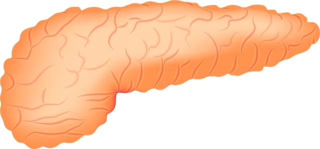 Como identificar mi tipo de pancreatitis