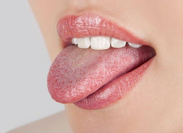 candidiasis oral y remedios naturales