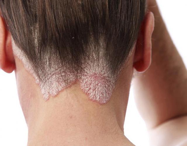 Remedios para la dermatitis seborreica