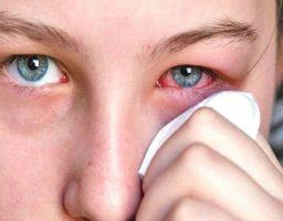 remedios naturales para la conjuntivitis
