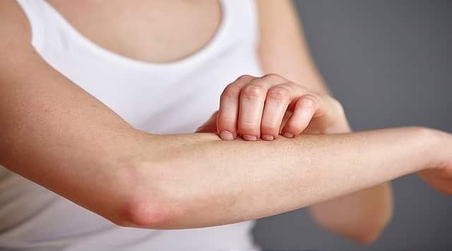 Dermatitis: Causas y remedios naturales