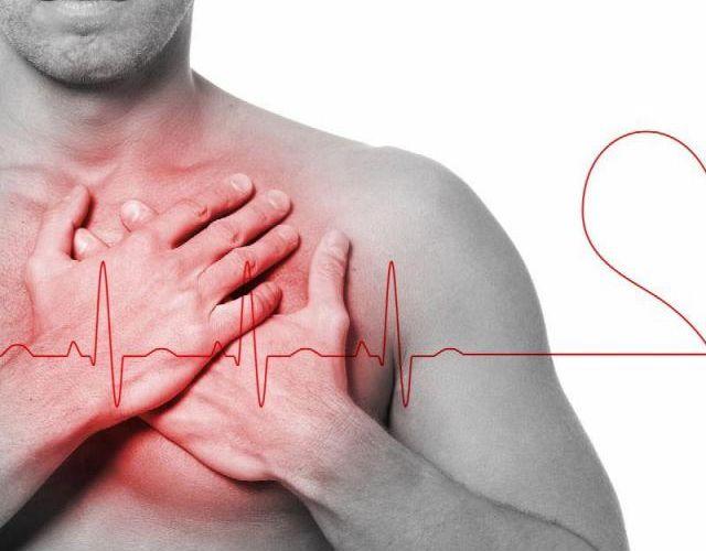 Arritmia cardíaca, síntomas y consejos