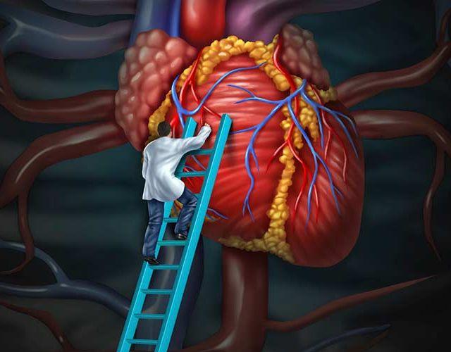 Las enfermedades del corazón más comunes