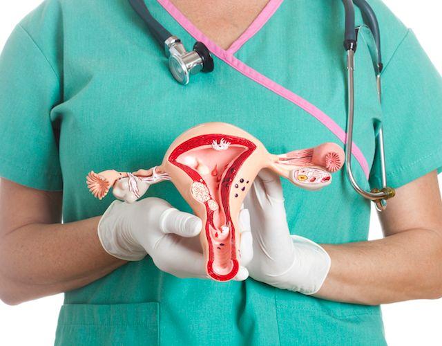 Miomas uterinos, ¿qué son?