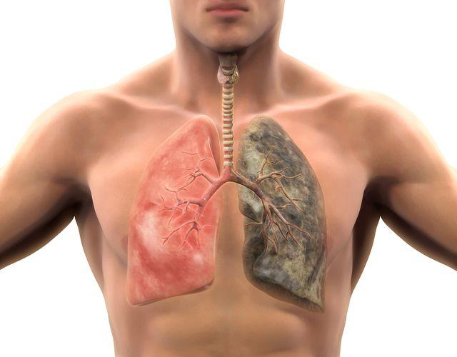 Tratamiento para líquido en los pulmones