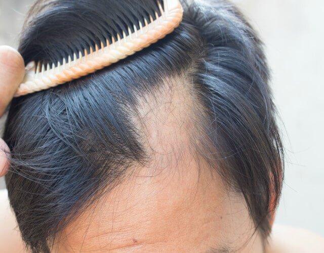 La alopecia o calvicie, es una de las enfermedades estéticas que más afecta emocionalmente a los hombres. Descubre los tratamientos para combatirla.