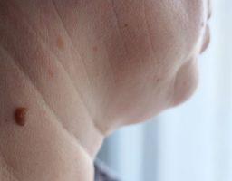 Cómo quitar verrugas del cuello