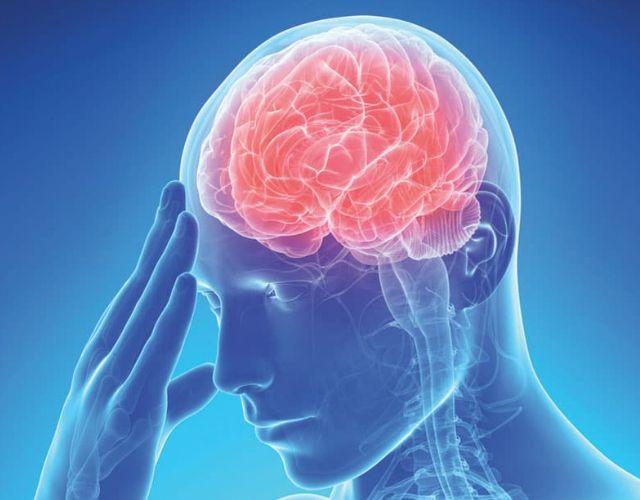 ¿Qué es una embolia cerebral? ¿Por qué ocurre?