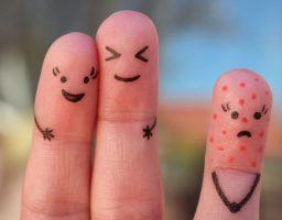 cómo evitar el contagio de varicela
