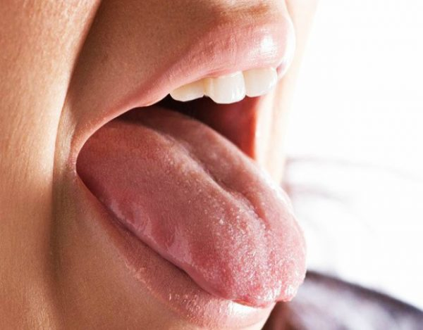 síntomas de mononucleosis