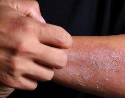 Cómo curar los hongos en la piel