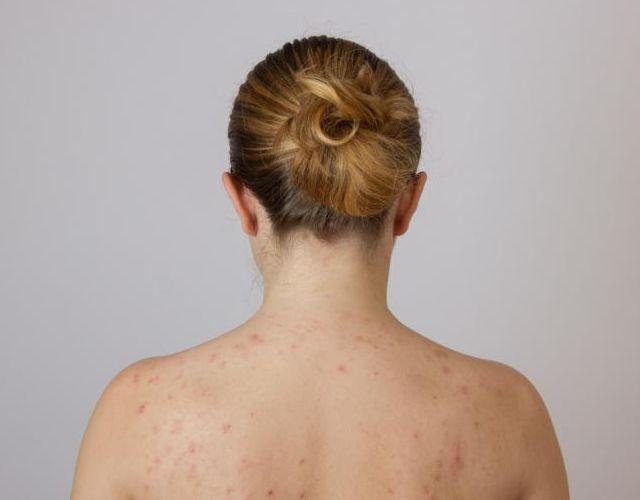 Causas de manchas rojas en la piel