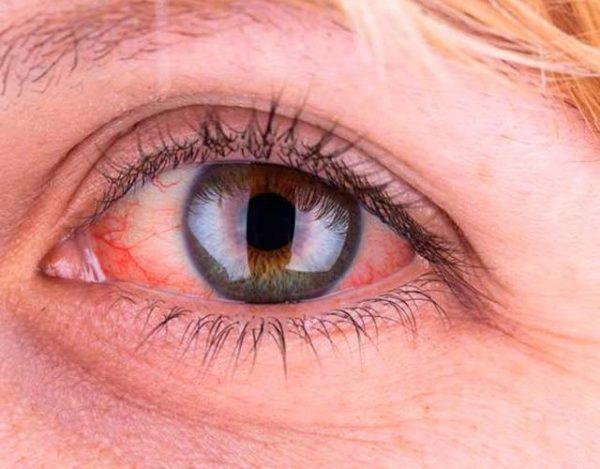 Causas de ojos amarillos
