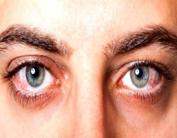 Causas comunes del dolor de ojos