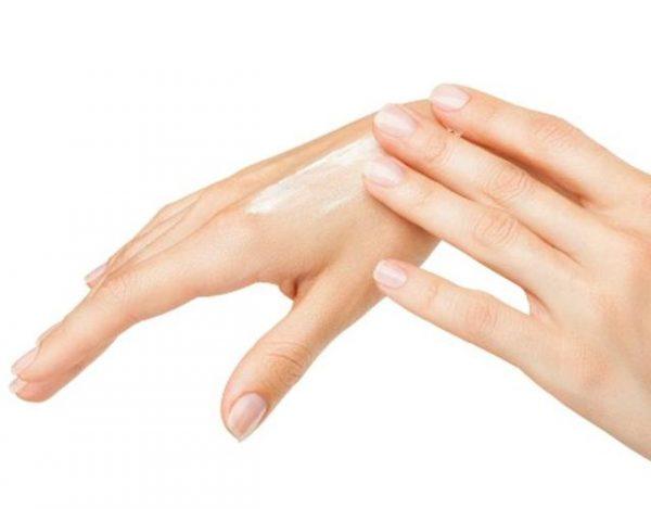 Psoriasis en las manos
