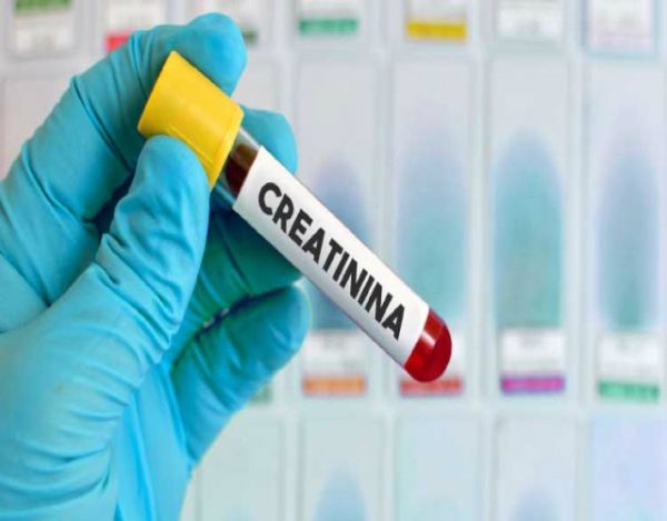 causas de la creatinina alta