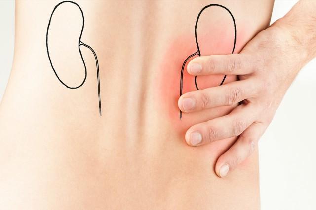 síntomas de cólico de riñón