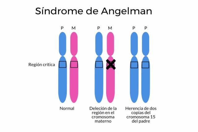 síndrome de angelman