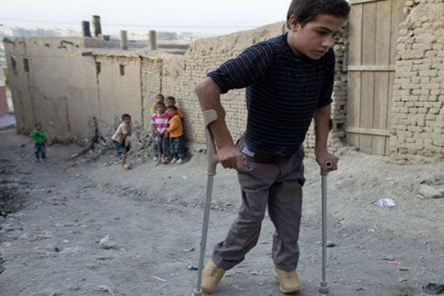 síntomas de la poliomielitis
