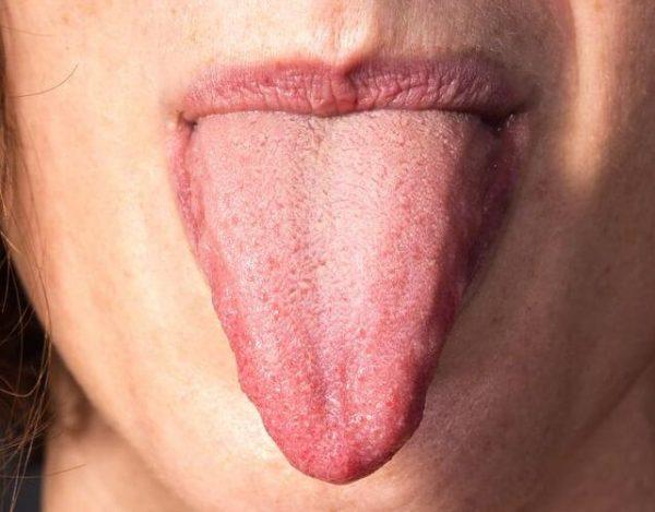 Cáncer de lengua: síntomas y tratamiento