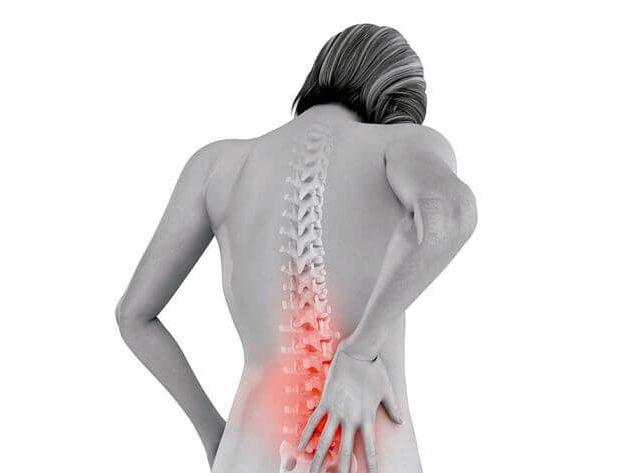 Protusión discal, causas, síntomas y tratamiento