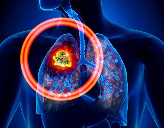 Síntomas de cáncer de pulmón