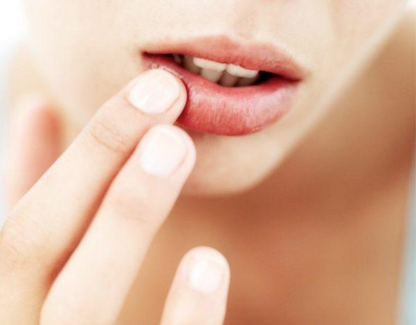 Síntomas de afta bucal