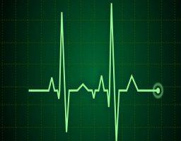 taquicardia sinusal