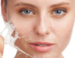 Tipos de peeling químico y beneficios