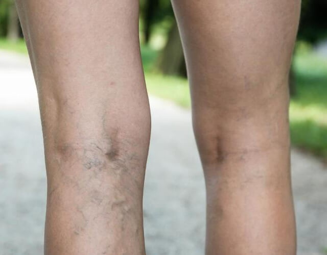 Varices en las piernas, porqué se producen y cómo tratarlas