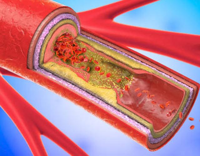 Arterioesclerosis: causas, síntomas y tratamiento
