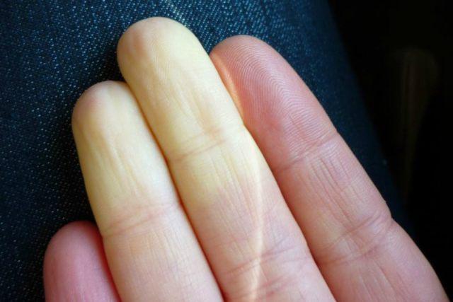 manos frías