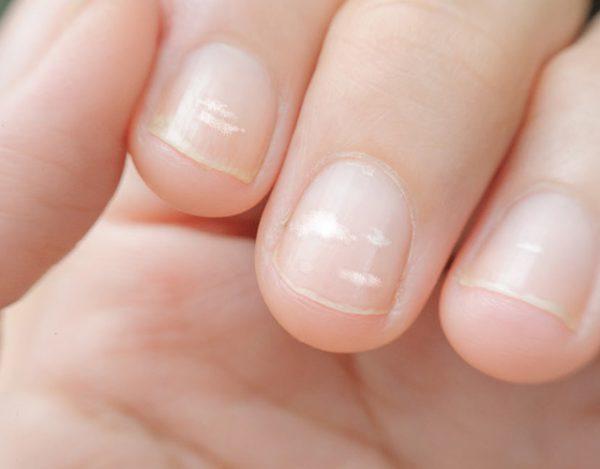 Manchas blancas en las uñas: causas y tratamiento