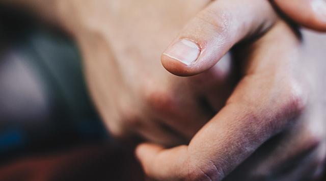 Causas de la manchas blancas en las uñas