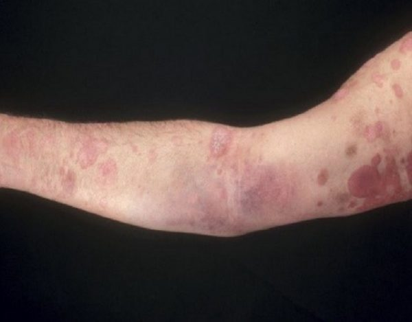 micosis fungoide