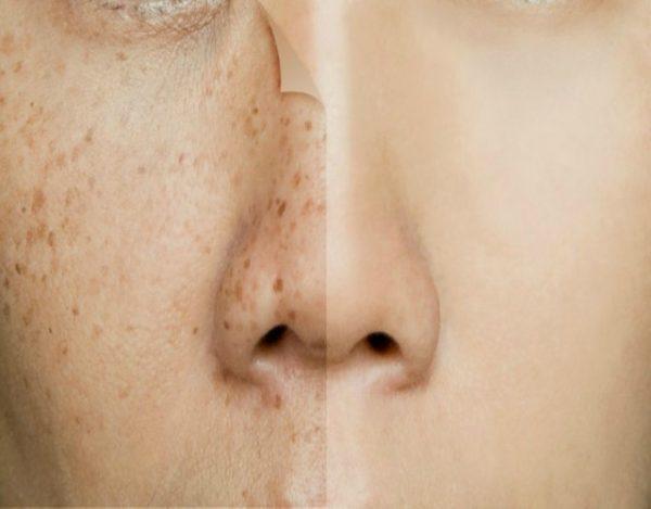 Causas de manchas oscuras en la piel