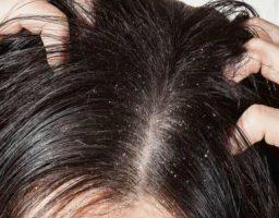 Remedios para el picor de cuero cabelludo