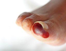 Gangrena: Síntomas, tipos y causas