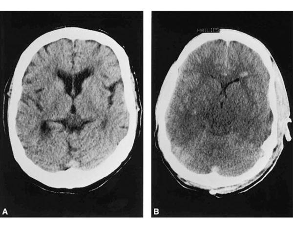 edema cerebral agudo