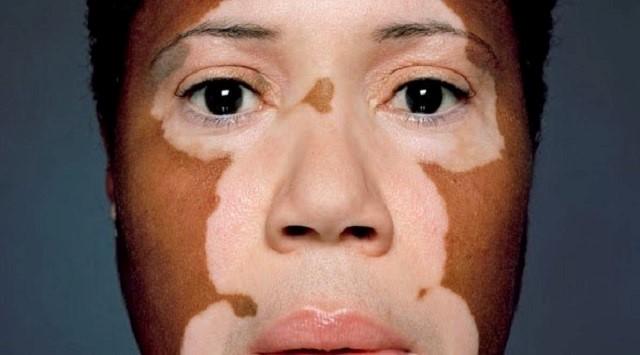 Trastornos de la pigmentación