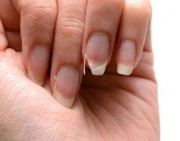 Remedios para uñas quebradizas